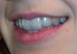 Teeth with Invisalign tray